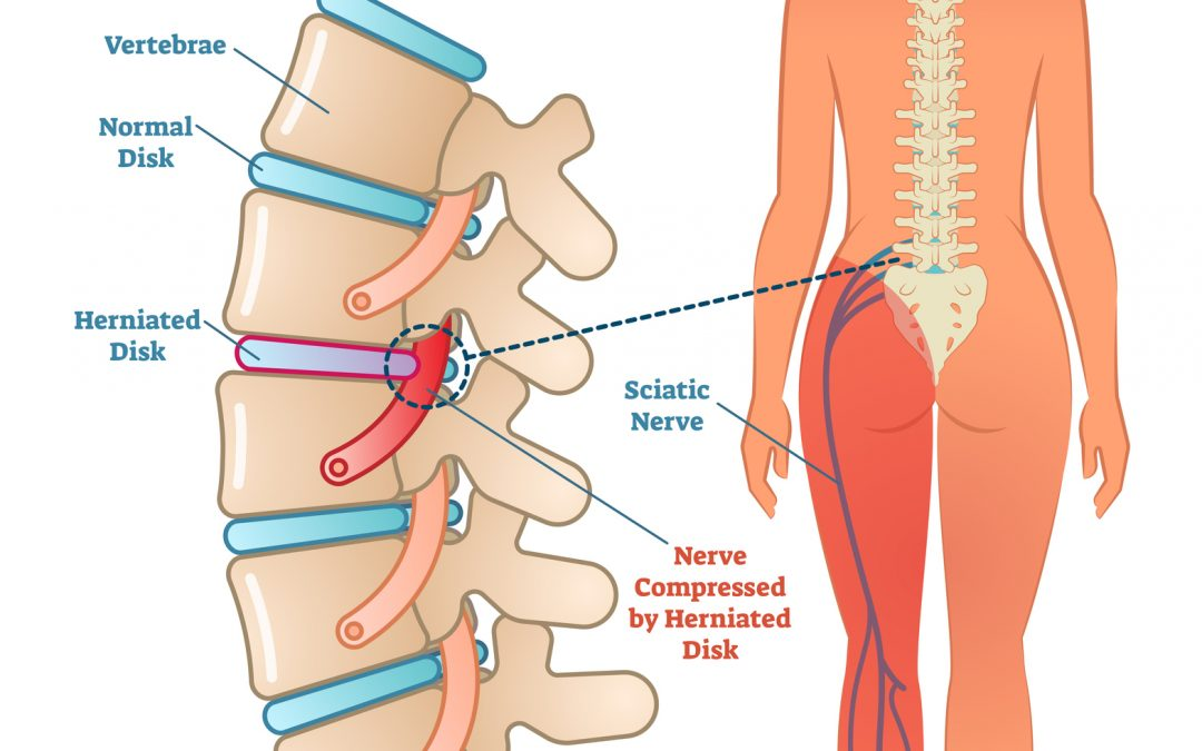 spiritual cause of sciatica