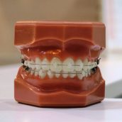 Metaphysical Causes of Gum & Dental Problems