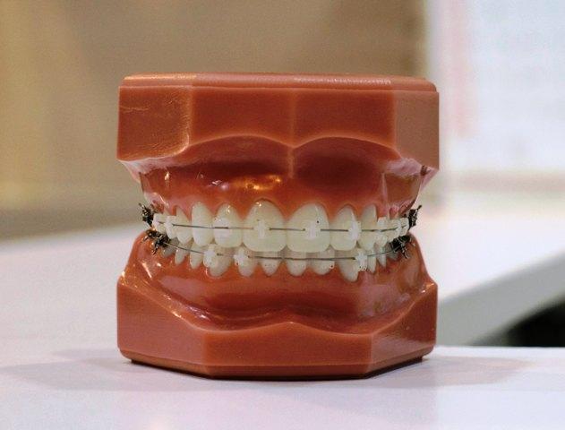 photo-of-dentures