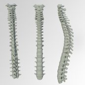 The Spiritual Cause of Scoliosis