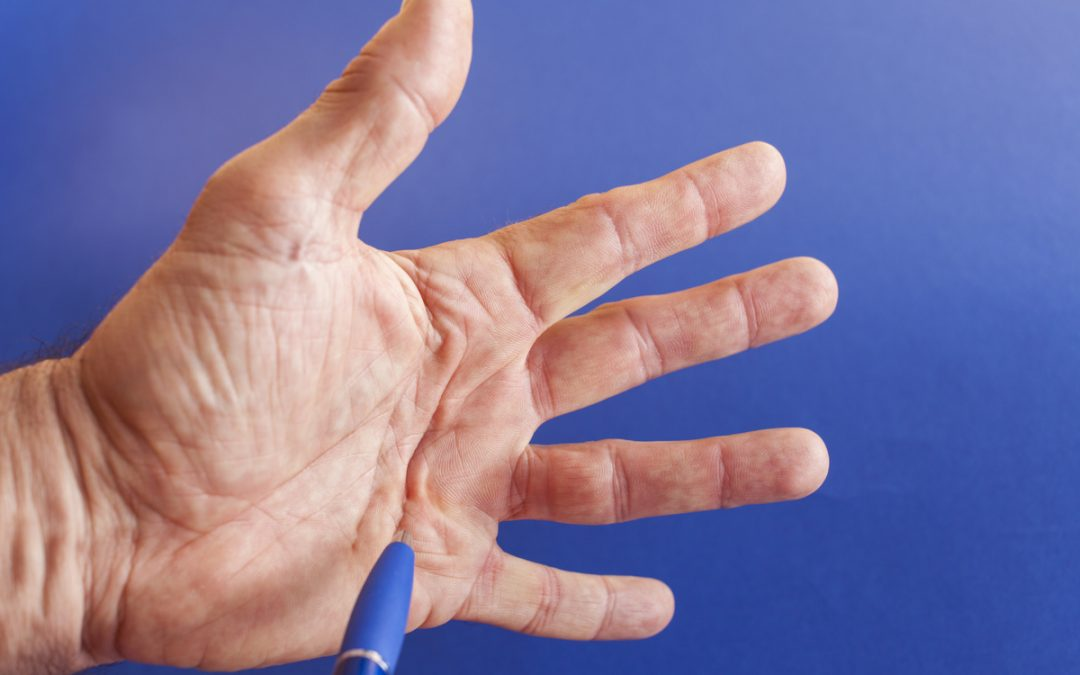 photo of dupuytens contracture